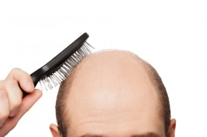 "iStock_000020070127Small-300x199Dihydrotestosterone is a chemical we have referred to in several of our articles. Commonly abbreviated as DHT, this chemical is a male hormone, converted from testosterone. High levels of it are the main cause of hair loss in men and women. However, there is more to it than just that.  DHT Love Before we get into why an abundance of DHT is bad for those of us who want to keep our hair, there are actually DHT enthusiasts out there.  As we all have come to know, there are two populations among hair loss: those who are reluctant, and those that don't care. A percentage of the latter makes up the enthusiasts. According to some possibly biased research, DHT is a ""stronger"" form of testosterone.  DHT is synthesized from testosterone daily, in both men and women. 5-10% of a male's testosterone will be converted until their genetics or glands cause an increase of testosterone for conversion. In both sexes, a higher conversion rate begins around the time of puberty, however there is a large defining feature of it in males. DHT is what causes the formation of the male genitalia during fetal development. A lack of it throughout ontogeny will cause underdeveloped genitalia, as well as an underdeveloped prostate.  Knowing how important DHT is to the development of the male body, it is clear why many men don't take it for granted. Those that embrace DHT have done their share of research on its benefits, and without a guess, you can find a few body building articles on it. Heralded as ""3 or more times as powerful of regular testosterone,"" DHT is cherished by those looking to build strength and muscle. DHT is known to play a role in not only sexual development, but also the enhancement of muscles, and hair loss.  DHT vs Hair An abundance of DHT has a variety of effects on both genders of the human population. Although mainly active during and after puberty, it is present in the body prior to this. In terms of puberty, it controls the production of body hair, hormonal processes such as menstruation (women) and sperm production (men), amongst other hormonal changes. Later, if an abundance occurs, balding can arise.  Male Pattern Baldness, or MPB, is the corner stone result of an abundance of DHT. Hair follicles are sensitized when presented to DHT, causing them to shrink and having a shorter lifespan as opposed to the normal hair growth cycle of several years.  Hair has three phases in its life cycle: growing, resting, and dying. During MPB, the growing phase fades as the resting phase increases in duration.  Since baldness happens mostly on the scalp, this is the main area scientists and researchers study when exploring the causes and cures for baldness.  The follicle bulb, containing the dermal papilla, is responsible for hair growth. It produces and divides the cells that make up hair follicles, and although hair is dead flesh, it is a result of the papilla getting nutrients from surrounding blood capillaries beneath the scalp.  When there is an abundance of DHT, it can block or implicate the absorption of nutrients to the dermal papilla. Once this happens, MPB or other forms of baldness can occur. Hair thinning is another effect that can result from DHT. As the hair follicle weakens and shrinks, the hair will also shrink and have a thin appearance. It can also fade in color, becoming lighter until hits the point of near transparency like the small furs that cover a majority of the human body.  There are several forms of baldness, not all caused by DHT:  -          MPB, sometimes referred to as Andogenetic Alopecia, is a form of baldness that miniaturizes hairs, and causes random areas of the scalp to become bald, tending to connect and create the ""pattern"" effect  -          Anagen Effluvium is rapid hair loss, usually caused by chemotherapy. The division of hair cells is halted, but as noted, an abundance of DHT can stop the dermal papilla from getting nutrition, thus also halting cell division  -          Telogen Effluvium is an extreme form of shedding, usually experienced as a result of trauma, infection, stress or surgery  -          Traction alopecia is hair loss from a constant pulling, such as intensive, excessive hair styling, braiding, etc  -          Regular balding, beginning with a receding hairline and a bald spot in the middle of the scalp  Although, not all baldness is caused by DHT, because DHT tends to affect the hair follicles and the division of hair cells beneath the scalp, many hair care and hair growth treatments target the scalp. Currently, the big chemical in the hair regrowth niche is Ketoconazole, an antifungal medication that cleanses the scalp of fungal infections, the fungi that causes dandruff, and DHT. These treatments are usually products such as shampoos and conditioners, but there are also topical solutions containing other chemicals.  DHT is a big problem when it comes to hair loss and baldness. However, it is also a main ingredient in the make-up of the human male. It's not all bad, but just like most things, it's best in moderation."