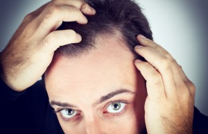 Dealing with Thinning Hair