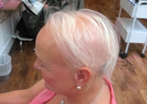 Specialist treatment provides confidence boost to sufferers of alopecia devastation